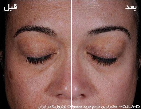 تاثیر استفاده از کرم ضد لک و روشن کننده نیتروژنا