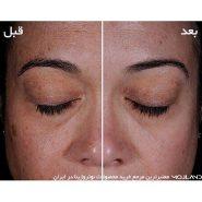 تاثیر مصرف کرم ضد لک و روشن کننده